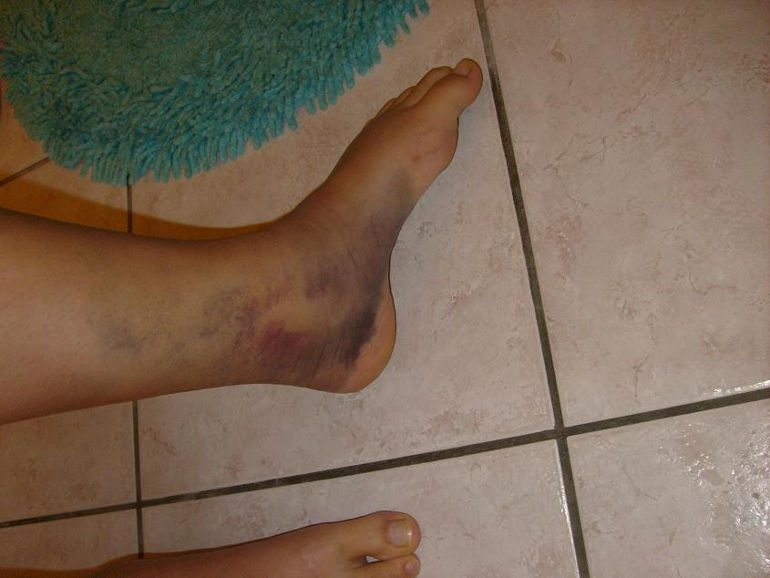 Vos blessures de guerre page 1 - Hematome jambe suite coup ...